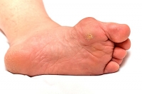 What's the Difference Between Corns and Calluses?