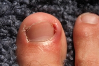 Preventing Ingrown Toenails